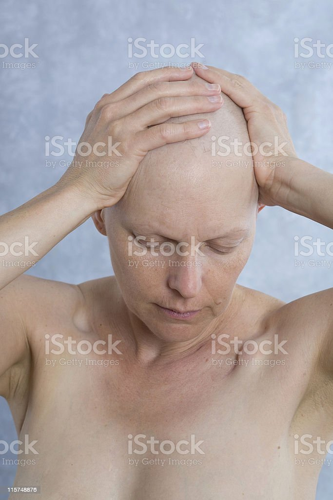 Breast cancer patient with hands on bald head. royalty-free stock photo