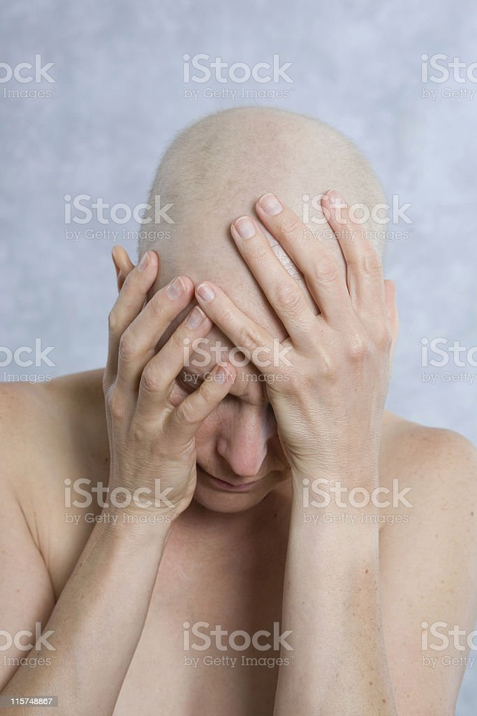 Breast cancer patient with her bald head in hands royalty-free stock photo
