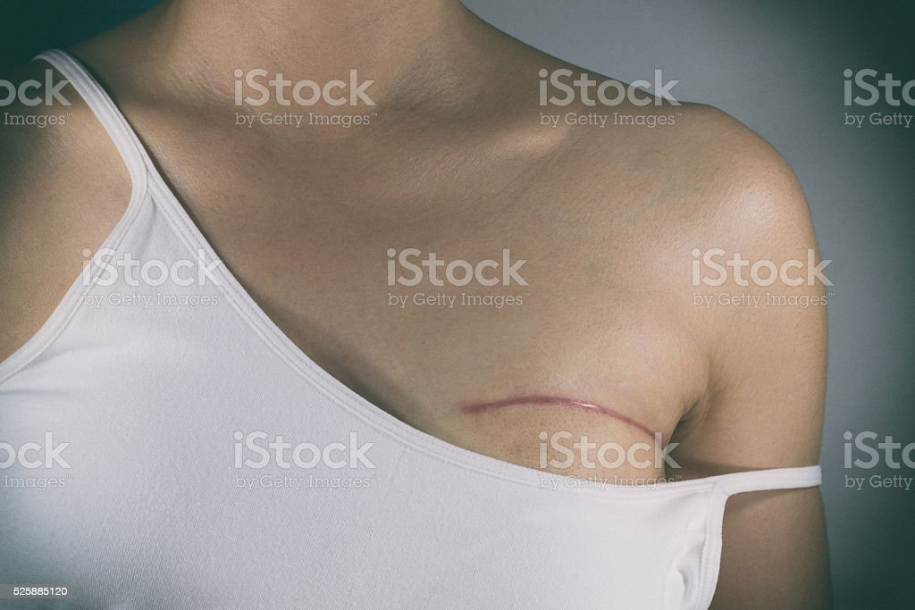 Breast cancer surgery scars stock photo
