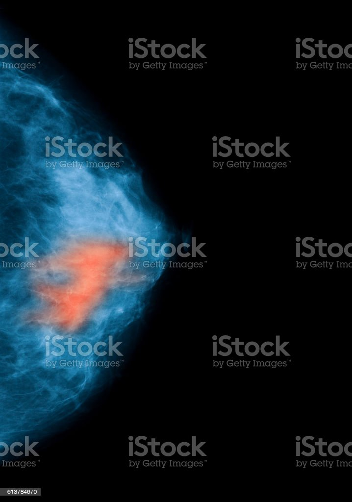 breast mammography stock photo