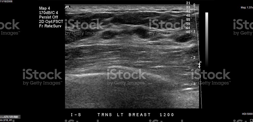 Breast Ultrasound royalty-free stock photo