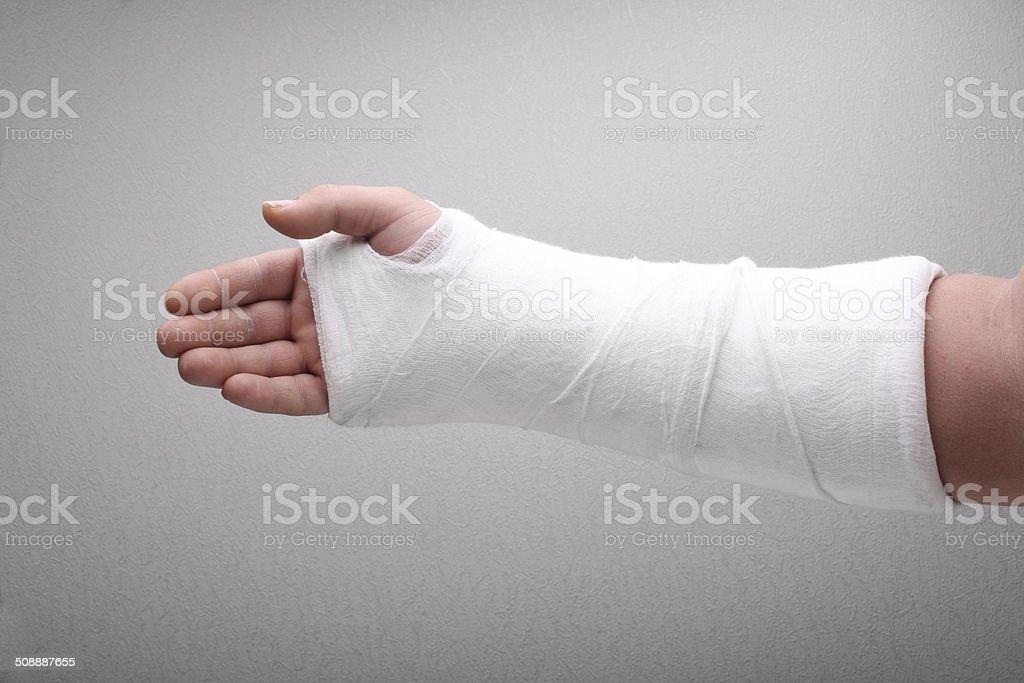 Broken arm bone in cast stock photo