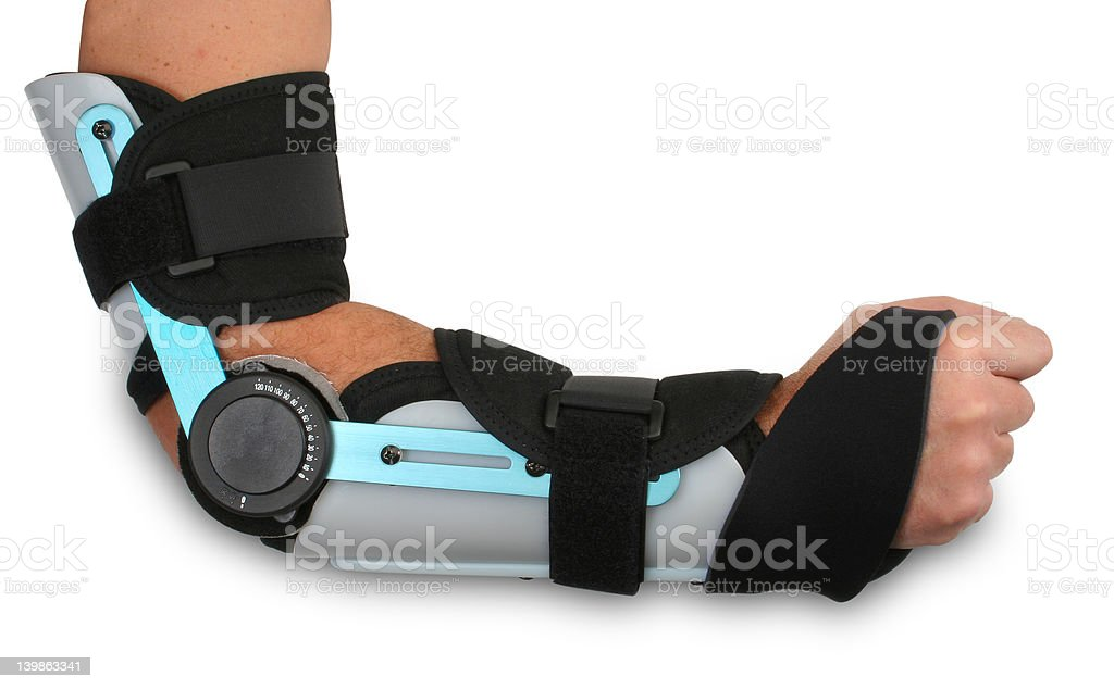 Broken arm in a cast royalty-free stock photo
