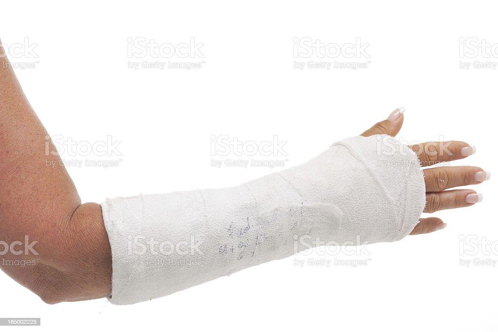 broken arm in cast stock photo