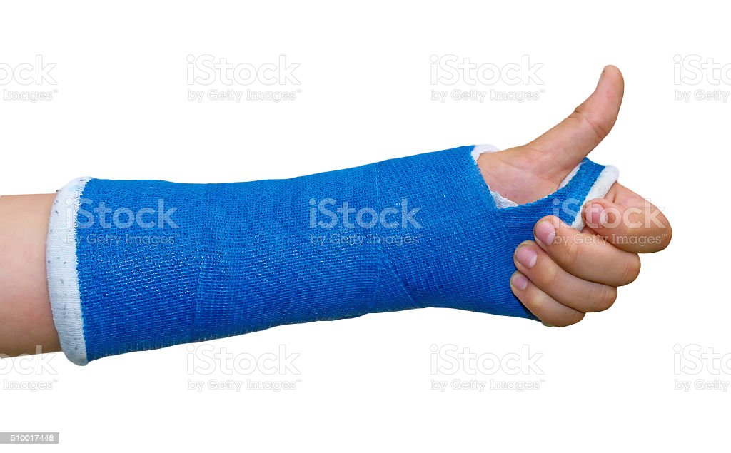 Broken arm -  thumb up stock photo