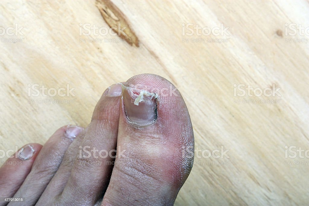 Broken fingernail royalty-free stock photo