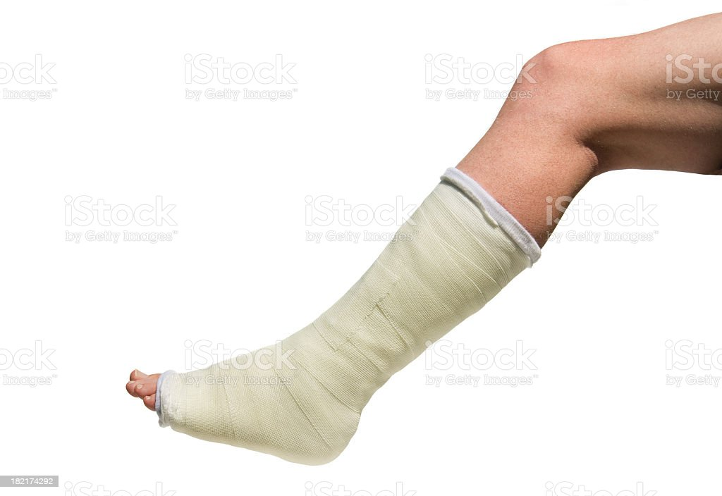 Broken Foot in cast isolated against white background stock photo