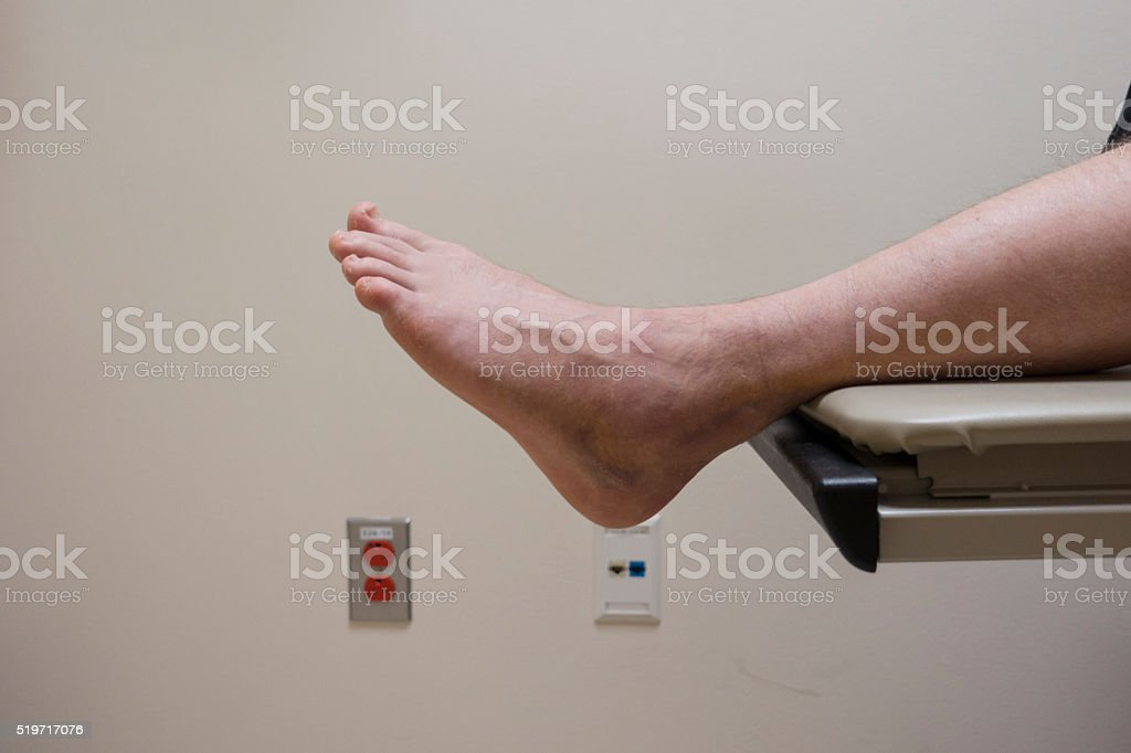 Broken Foot or Sprained Ankle at Podiatrist stock photo