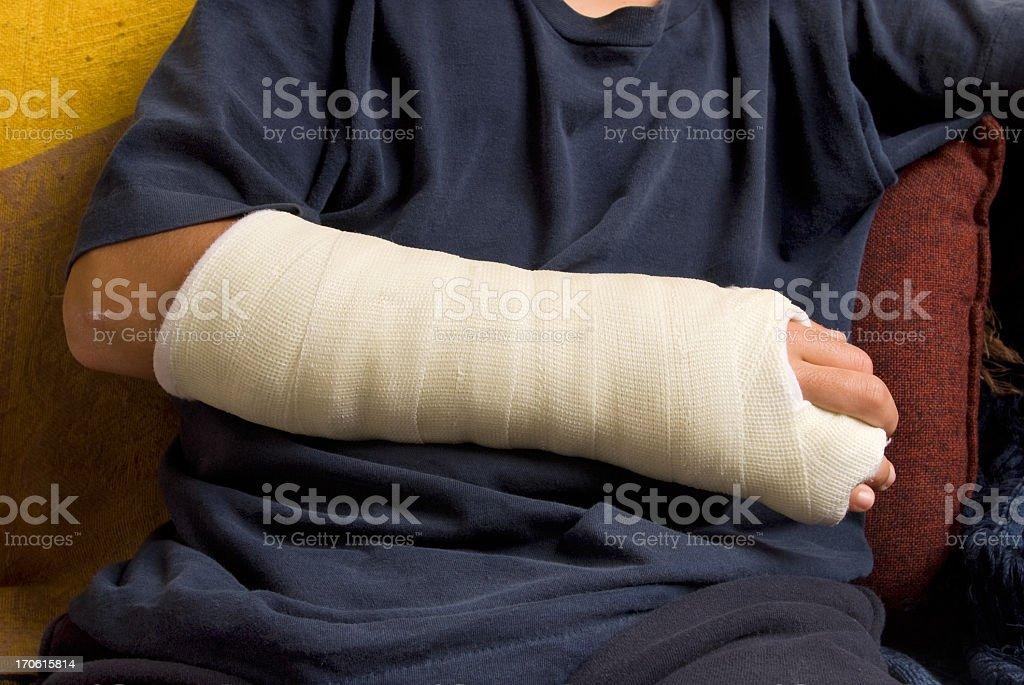 Broken hand stock photo