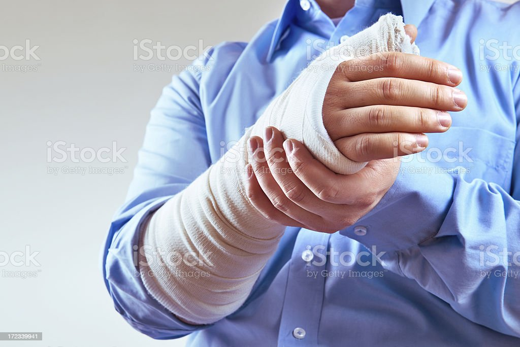 Broken hand with copy space stock photo