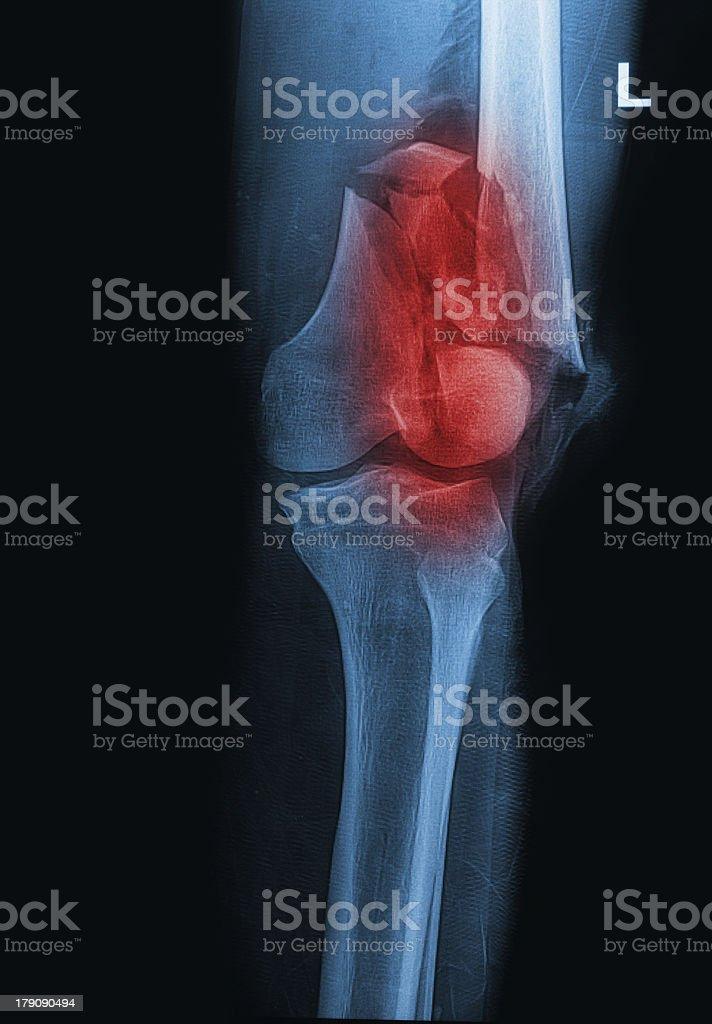 broken human thigh x-rays image ,lelf leg fracture royalty-free stock photo