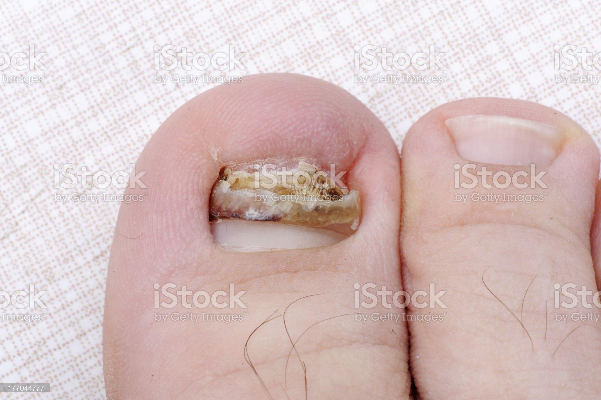 Broken ill nail on leg royalty-free stock photo