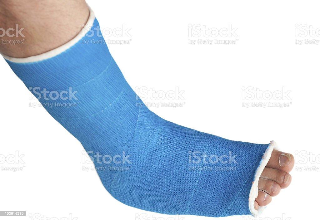 broken leg in a plaster cast stock photo