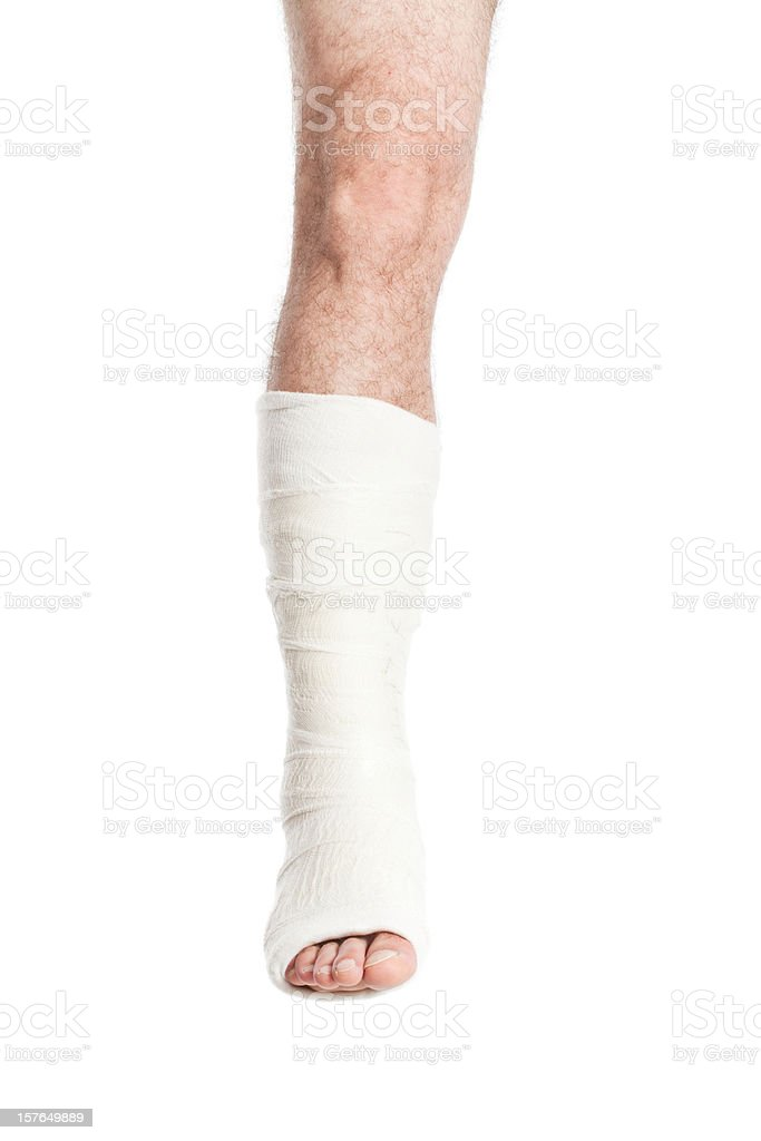 Broken Leg in Cast, Isolated on White royalty-free stock photo