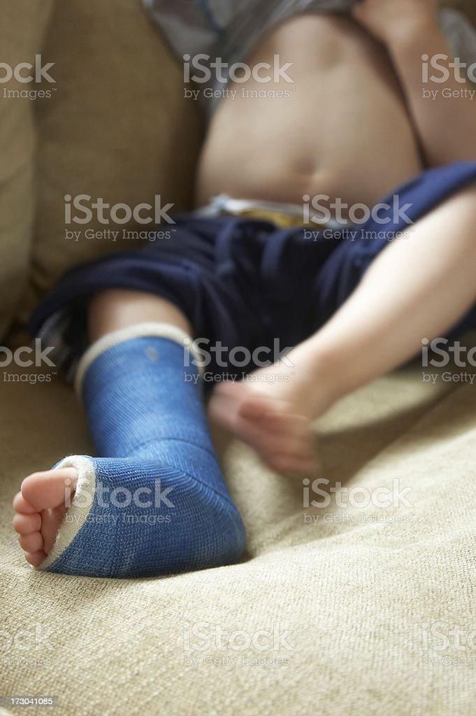 Broken leg in cast stock photo