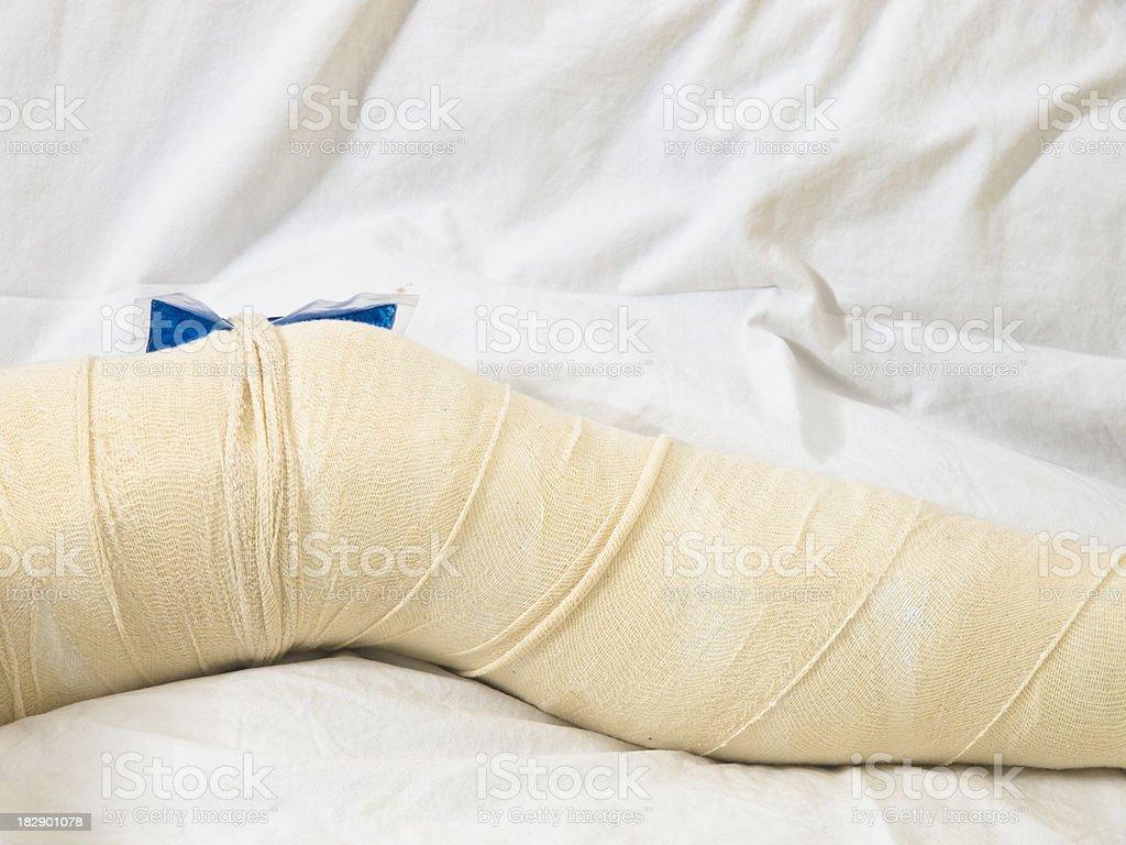 Broken leg royalty-free stock photo