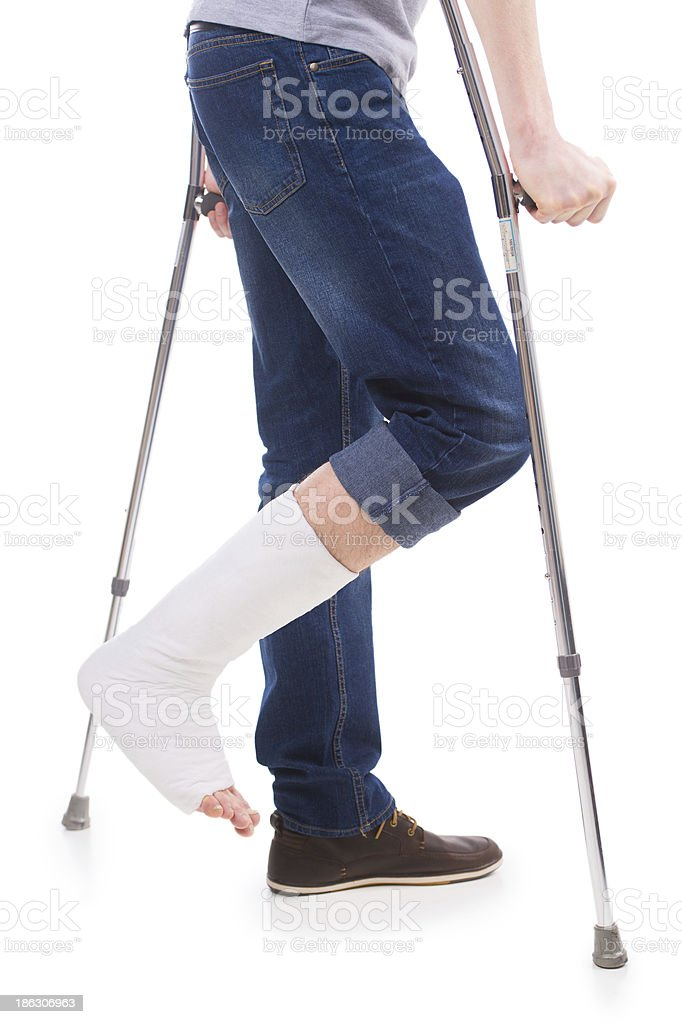Broken leg royalty-free stock photo