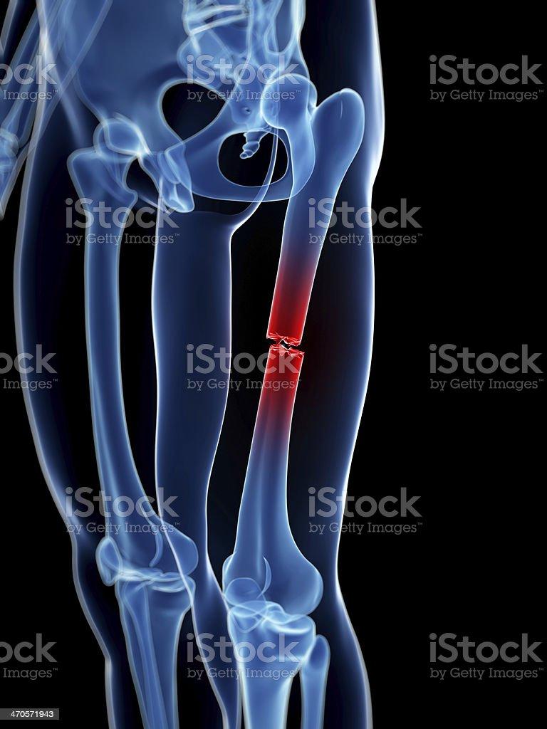 broken leg stock photo