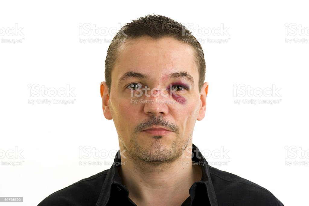broken nose and black eyes royalty-free stock photo