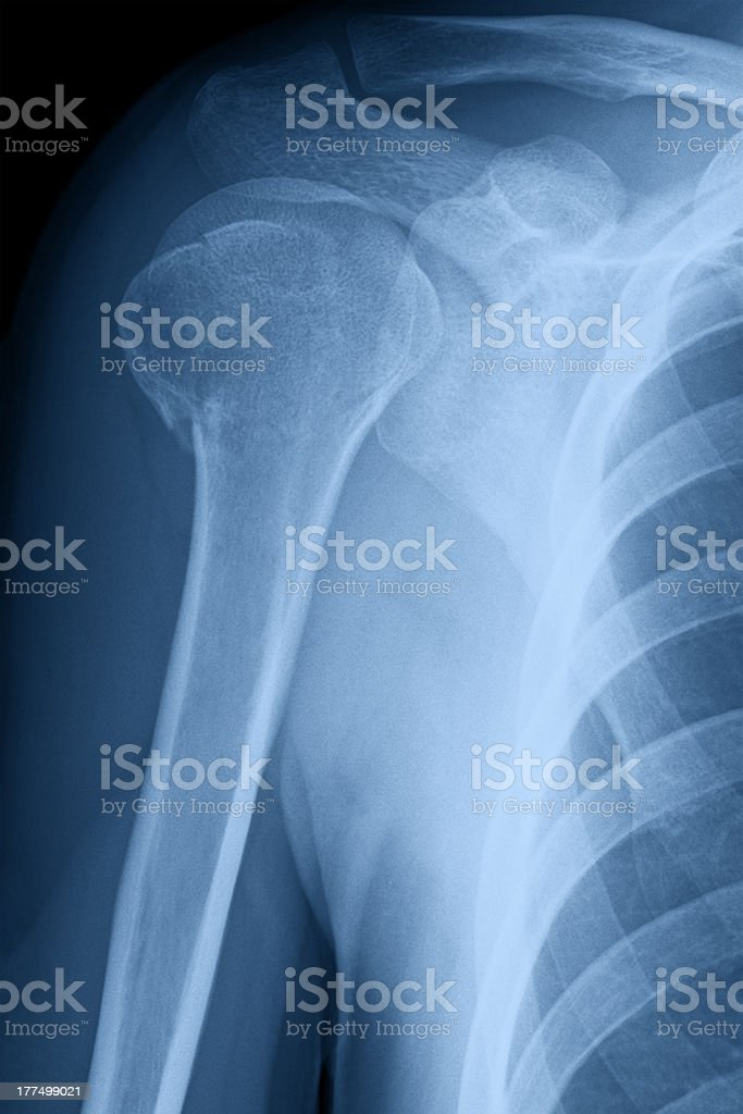 Broken Shoulder X-ray Image royalty-free stock photo