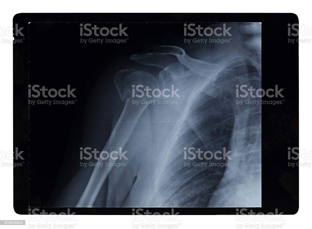 Broken Shoulder Xray stock photo