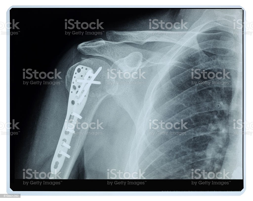 Broken Shoulder Xray Postoperation stock photo