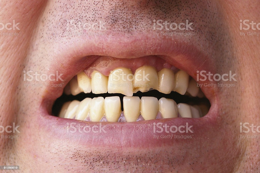 Broken Teeth stock photo