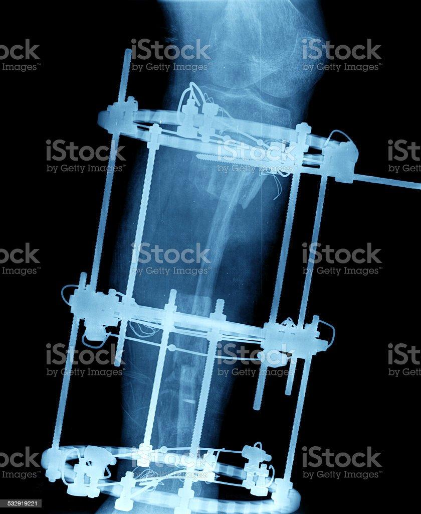 Broken tibia and fibula Xray stock photo