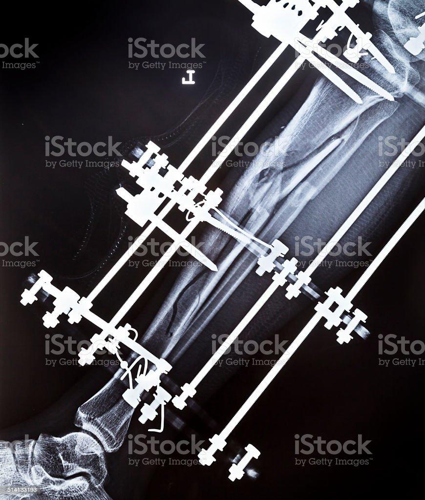 Broken tibia annd fibula Xray stock photo