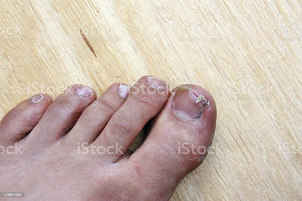Broken toenail royalty-free stock photo