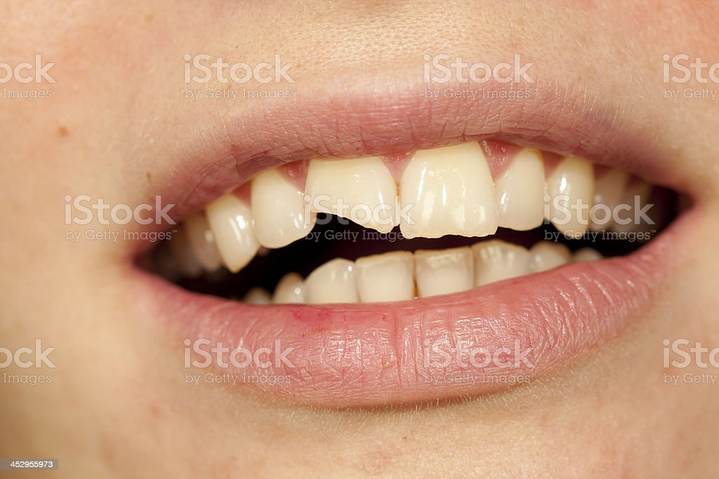 broken tooth stock photo