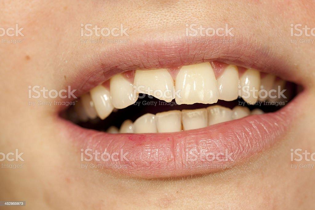 broken tooth stock photo