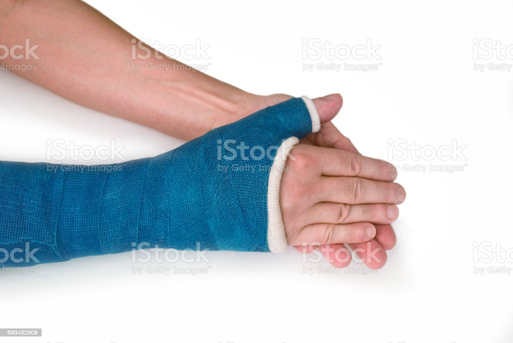 Broken Wrist, Arm with a Blue Fiberglass Cast on a white background stock photo