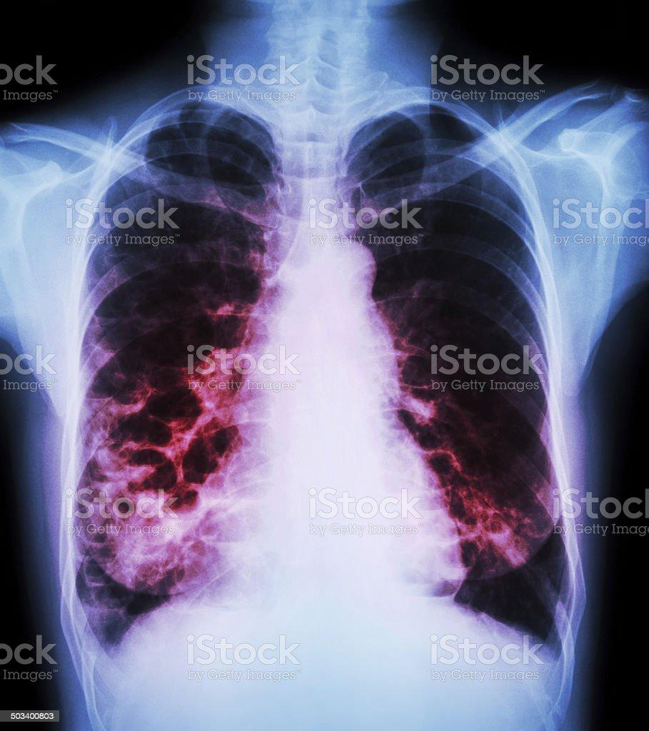bronchiectasis stock photo
