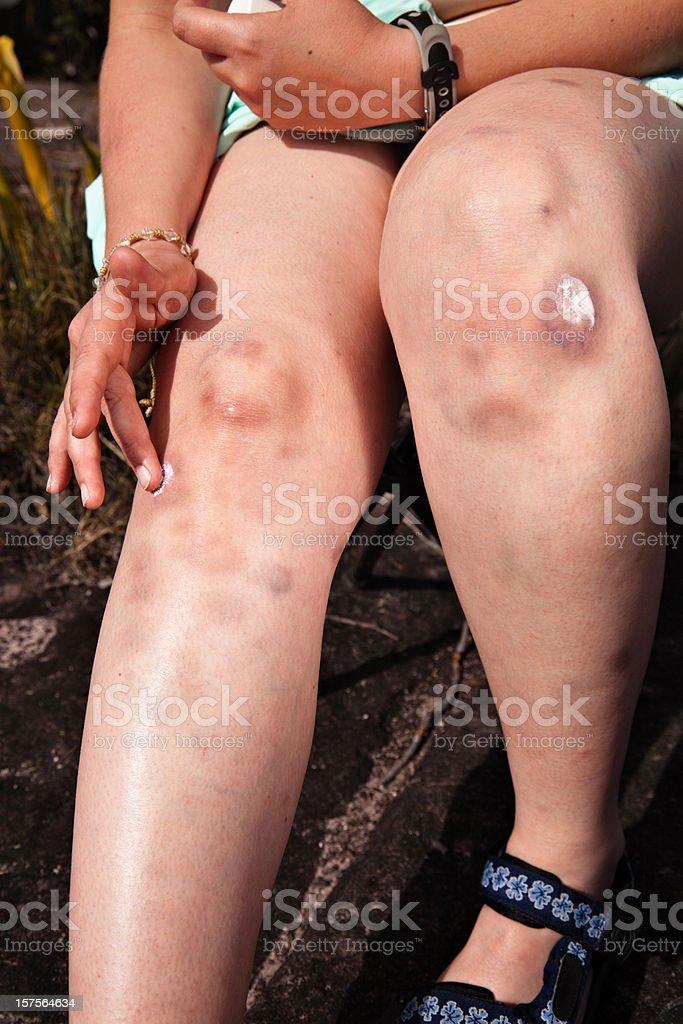 Bruise healing stock photo
