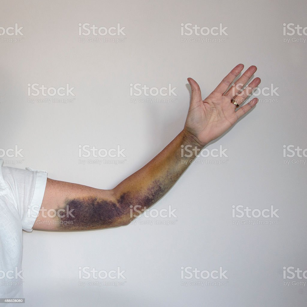 Bruise on Arm stock photo