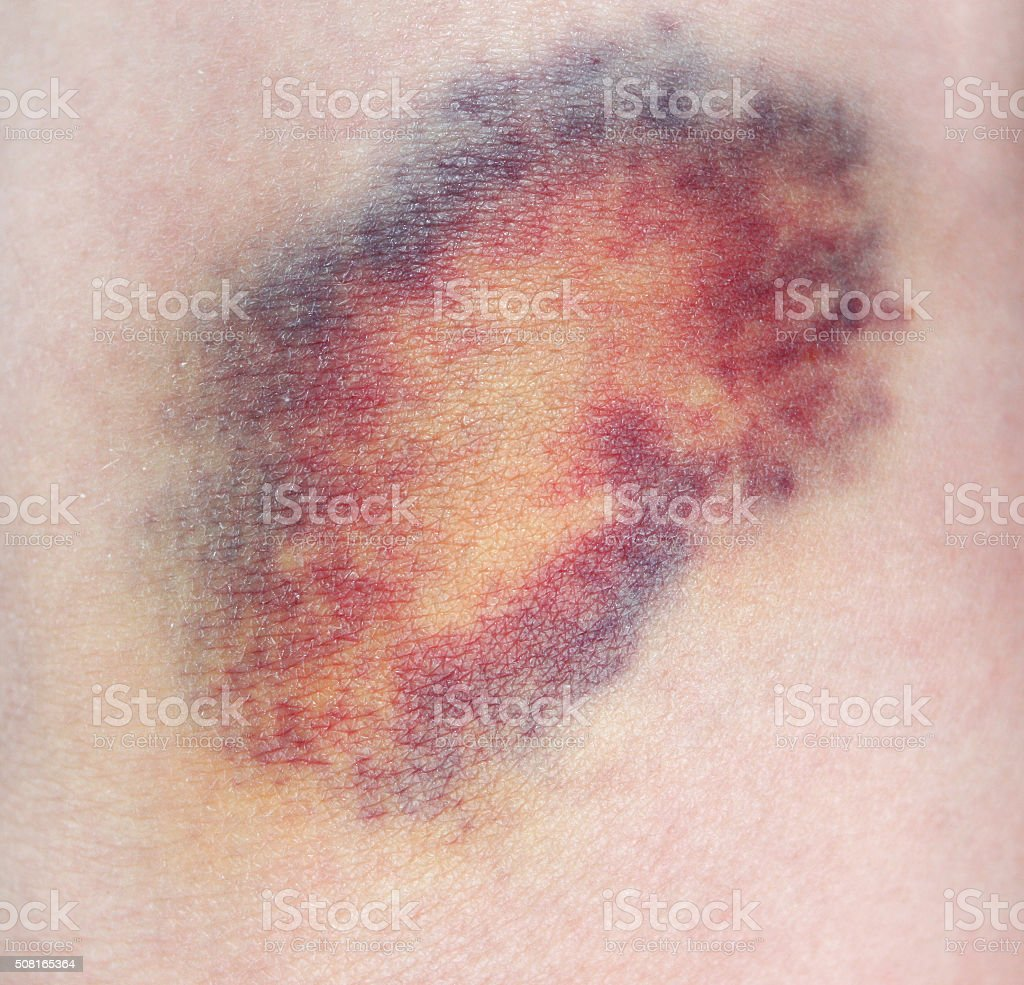 Bruise stock photo