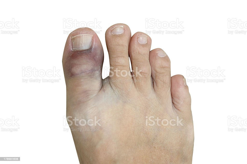 Bruised and broken big toe isolated on white royalty-free stock photo