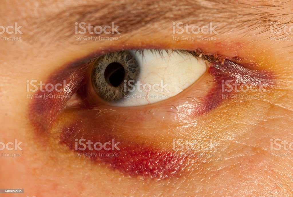 bruised eye stock photo