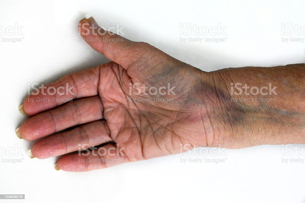 Bruised fractured wrist royalty-free stock photo