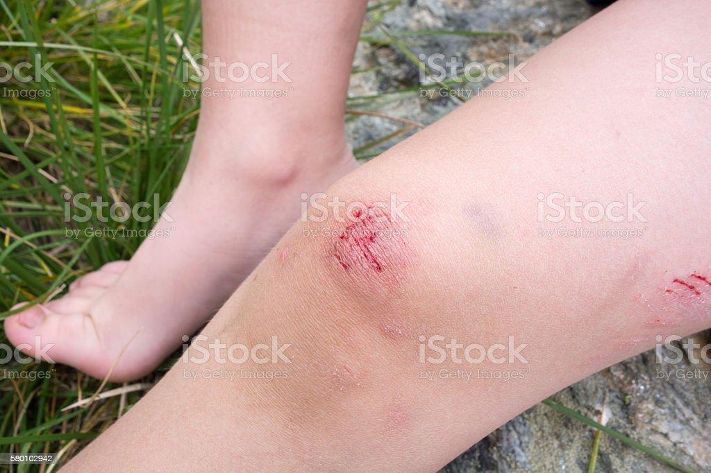 Bruises On Boy Knee stock photo