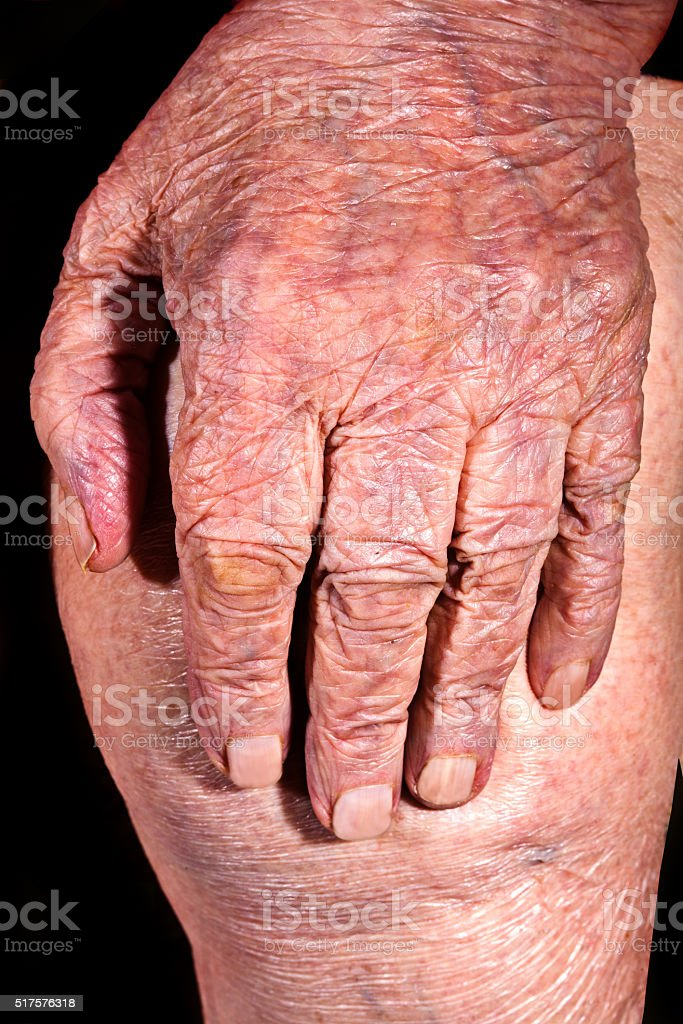 Brush old sick woman on arthrosis of knee, body fragment stock photo