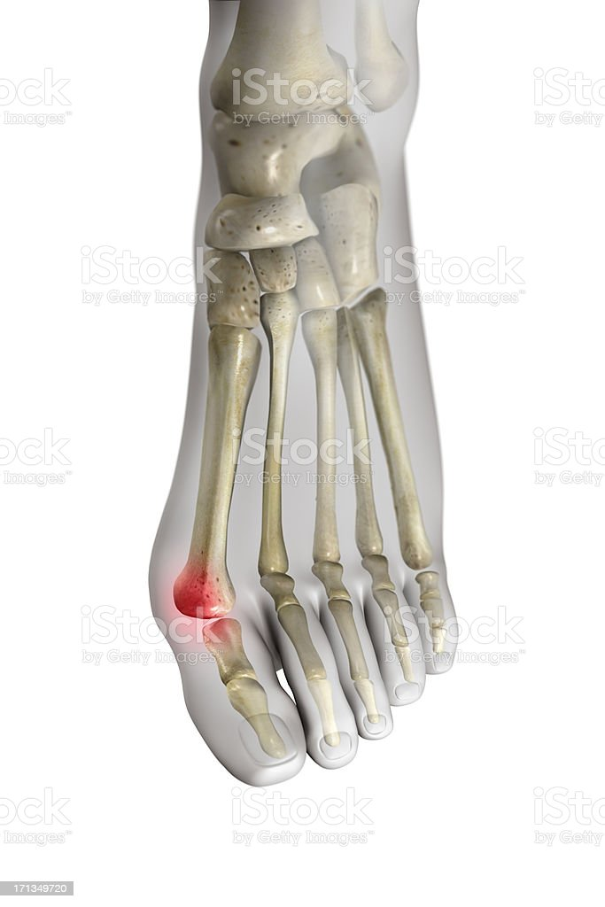 Bunion (Hallux valgus) stock photo