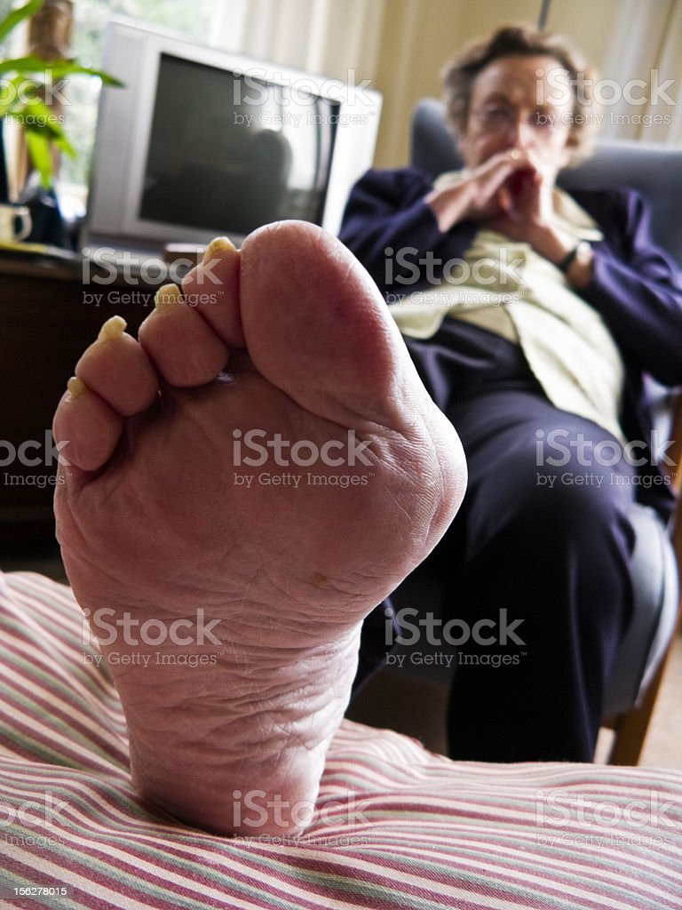 Bunion with gout stock photo