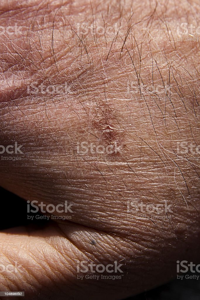 Burn on man's hand royalty-free stock photo