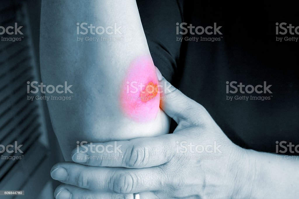 Burns on forearm skin royalty-free stock photo