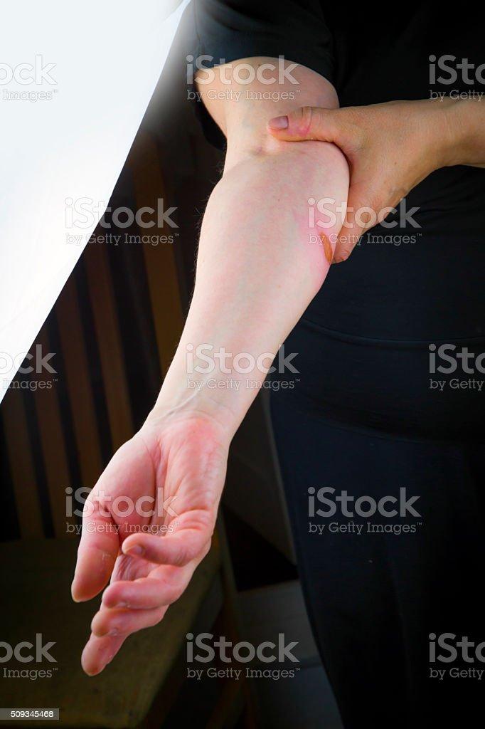 Burns on forearm skin royalty-free stock photo
