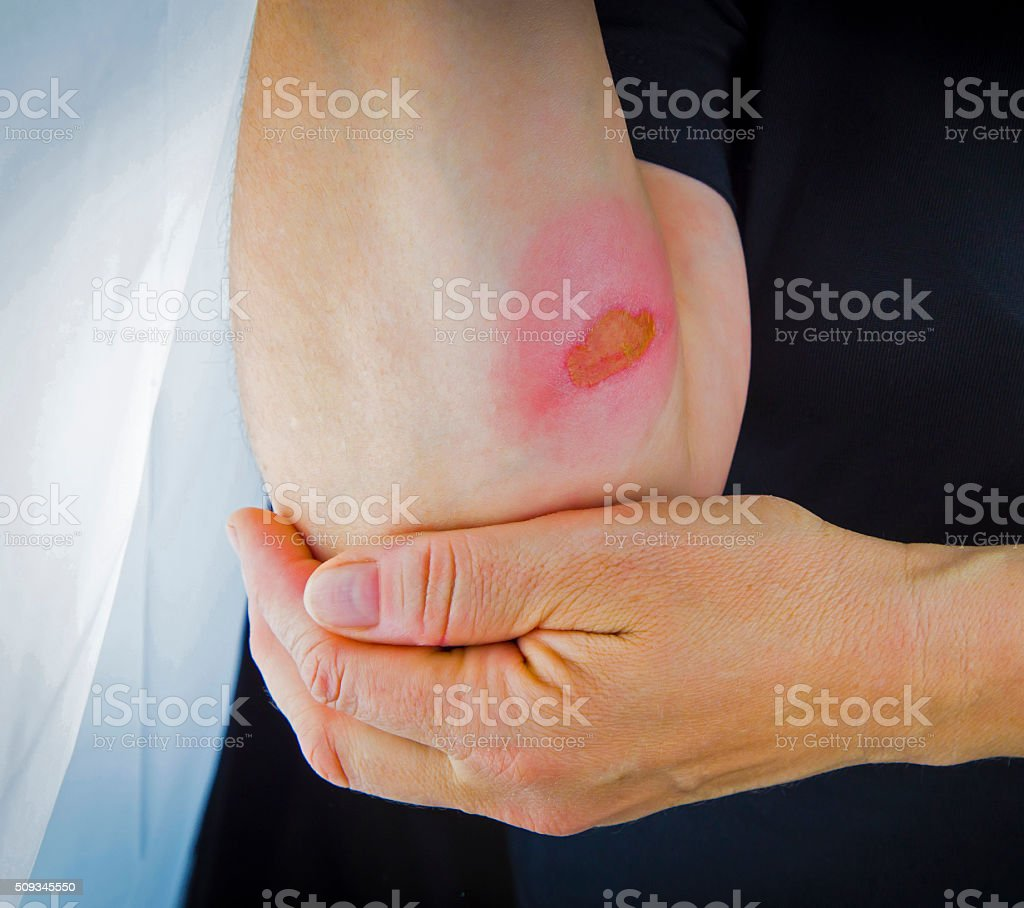 Burns on forearm skin stock photo