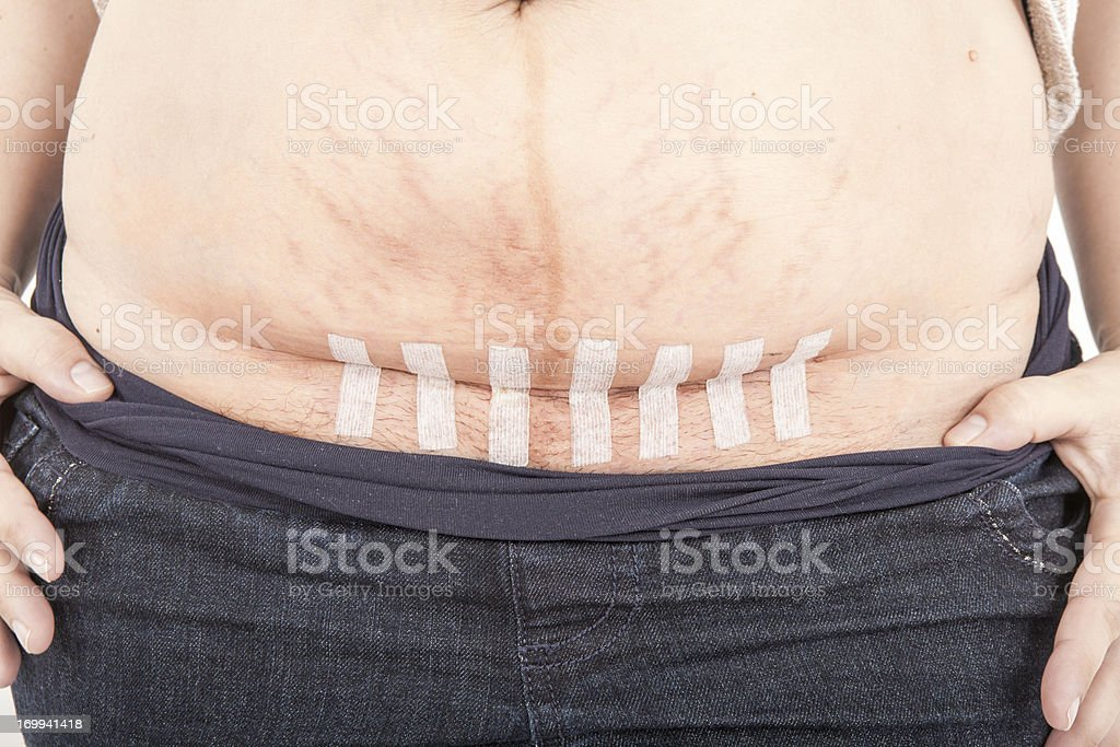 Caesarean section with steri strips stock photo