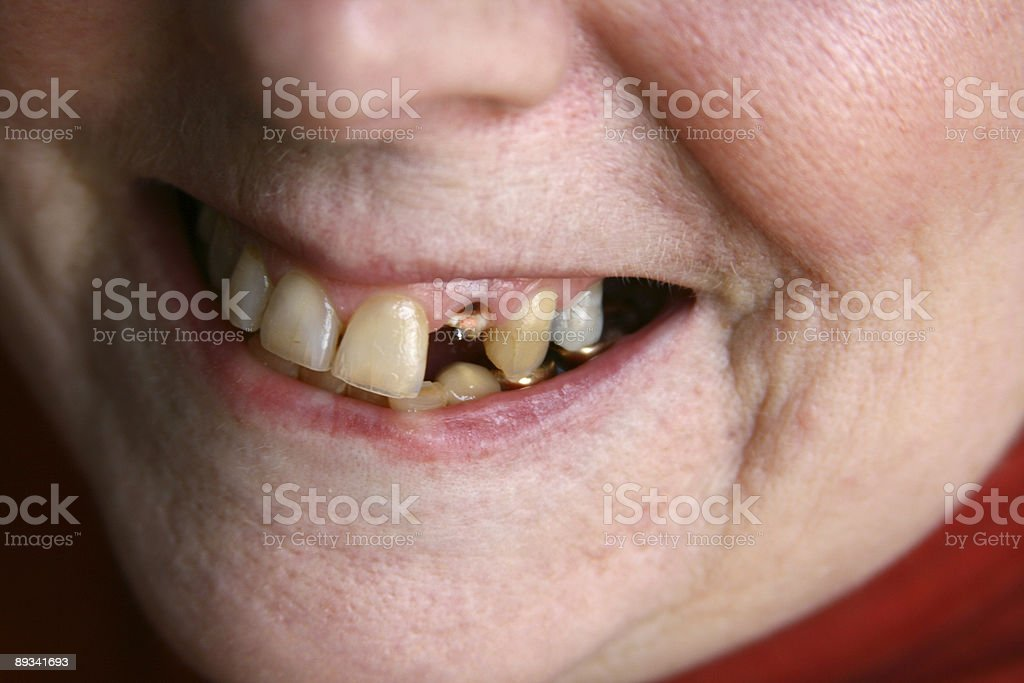 Call the Dentist Soon: Woman missing Tooth royalty-free stock photo